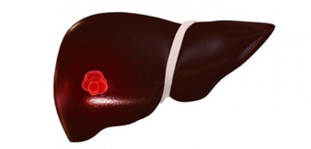 瑞格非尼显著提高肝癌患者寿命